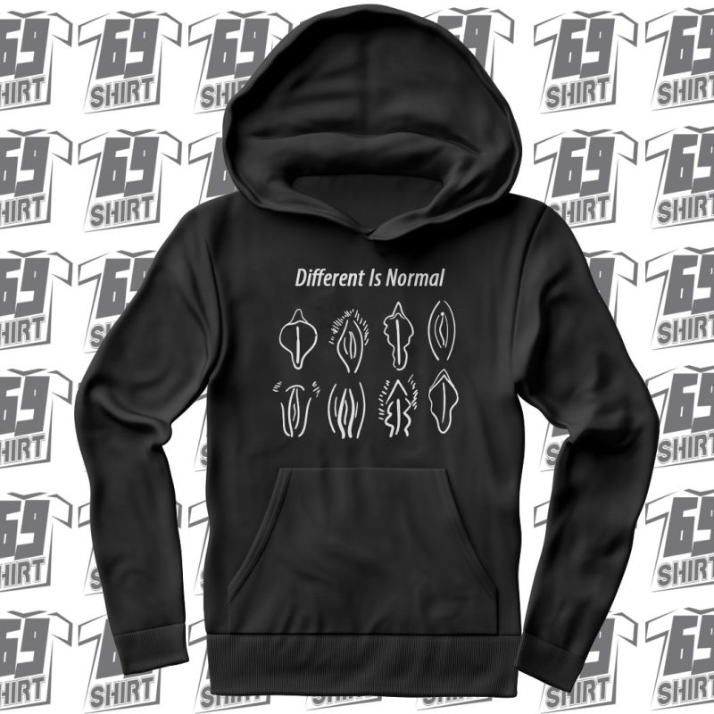 Different Is Normal Miss V Trend SX0020